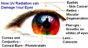 紫外線で目が真っ赤